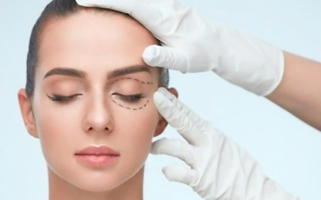 Blefaroplastia: a Cirurgia Plástica das Pálpebras