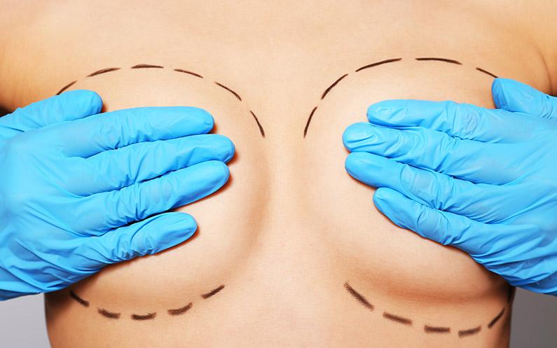 Mamoplastia de Aumento e de Redução